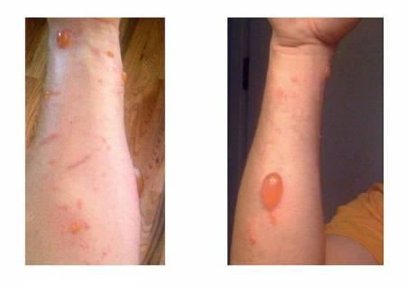 Urushiol induced contact dermatitis
