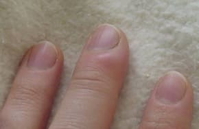 A mild fingertip infection